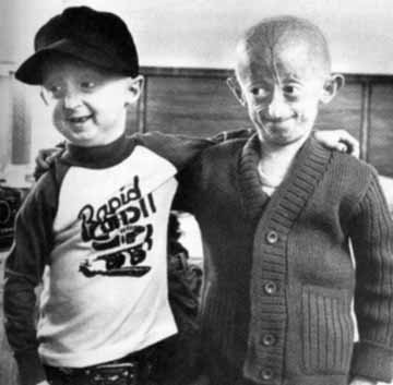 PROGERIA: New Hope on the Horizon « Health and Wellness